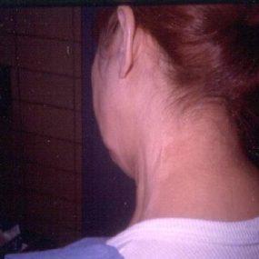 Persistent rough skin