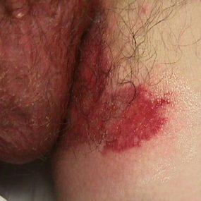 Pruritic Painful Groin Rash