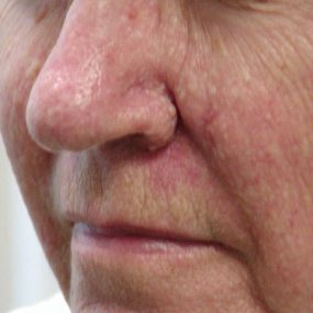 Multiple Papules on Cheeks and Nose