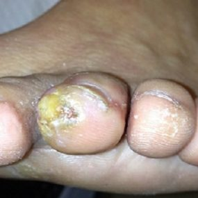 Pruritic, painful callus on the toe