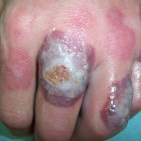 Sores on both hands