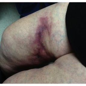 Rapidly expanding necrotic plaques in an elderly woman