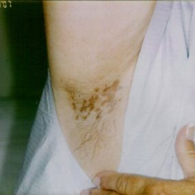 Pruritic plaques in the axillae
