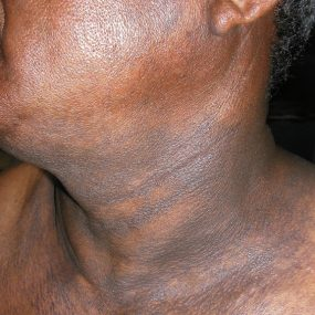 Darkish discoloration of skin involving the back, neck, and upper arms