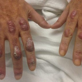 Burning and stinging red nodules on the dorsum of hands
