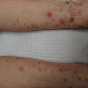 Blisters on arms and legs