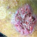 Reoccurring lesions on arms of HVAC worker