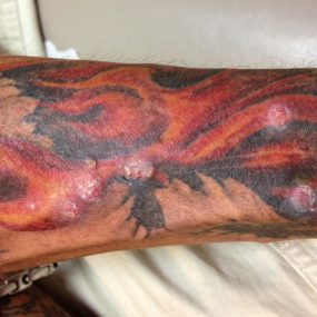 Multiple nodules arising in a tattoo