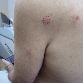 A 53-year-old male with pruritic red papules