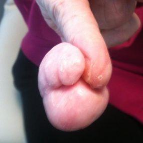 Enlarging tumor on the finger