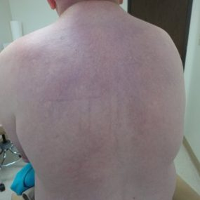65-year-old gentleman with erythematous induration of the skin on his back