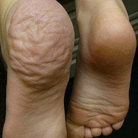 Excess skin on hand and foot
