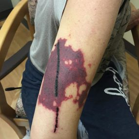 Purpuric rash in a 40-year old female abusing cocaine
