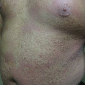 Pruritic rash involving upper torso and extremities