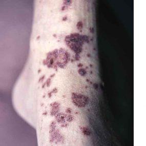 Dyspnea, Hemoptysis, and Rash