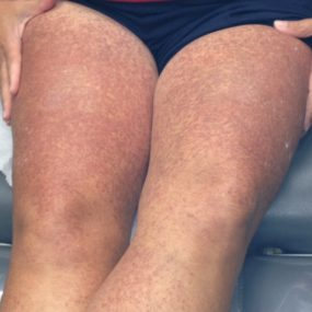Woman with red brown bumps on thighs and back