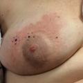 Persistent nipple dermatitis