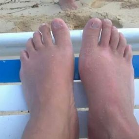 Lower extremity lesions in a female with Graves' disease