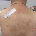 Woman with unusual nodules on her trunk and extremities